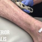 Electrical Stimulation and Dry Needling